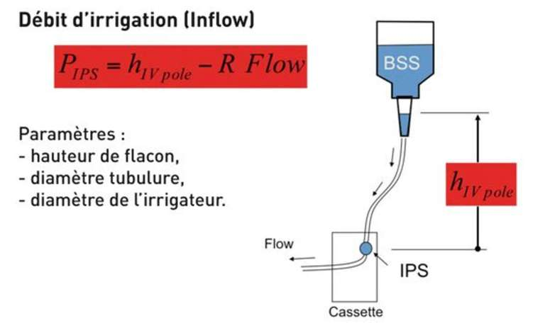 Figure 2. Paramètres d'irrigation gravitationnelle