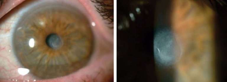 Figure 1. Opacification cornéenne à 5 ans de l'implantation d'un inlay cornéen synthétique (Raindrop Near Vision®).