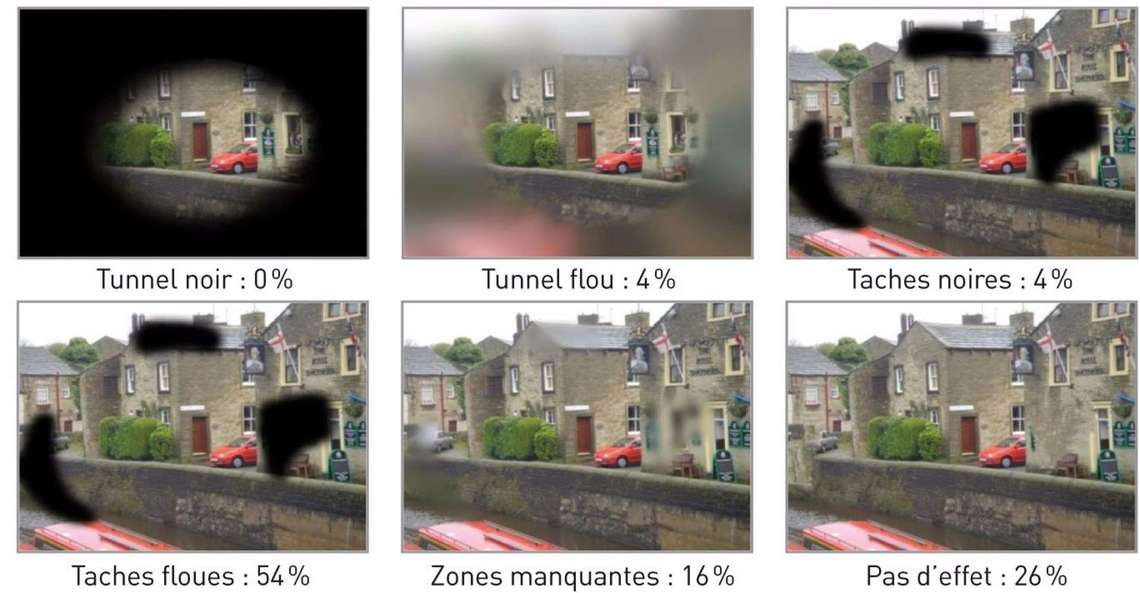 Modélisations de la perception visuelle ressentie par les patients atteints de glaucome
