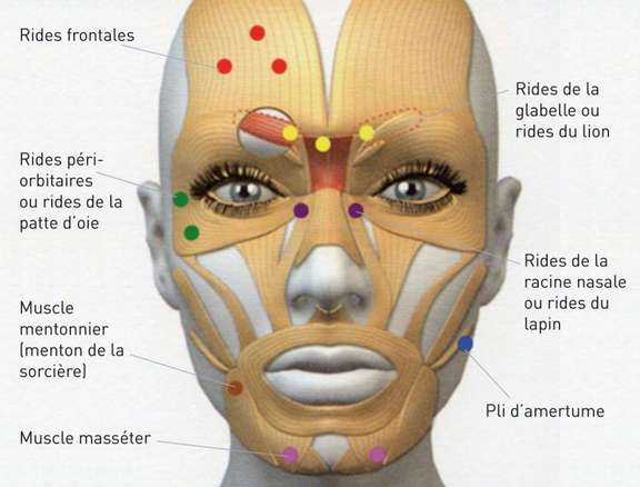 toxine botulique ophtalmologie)