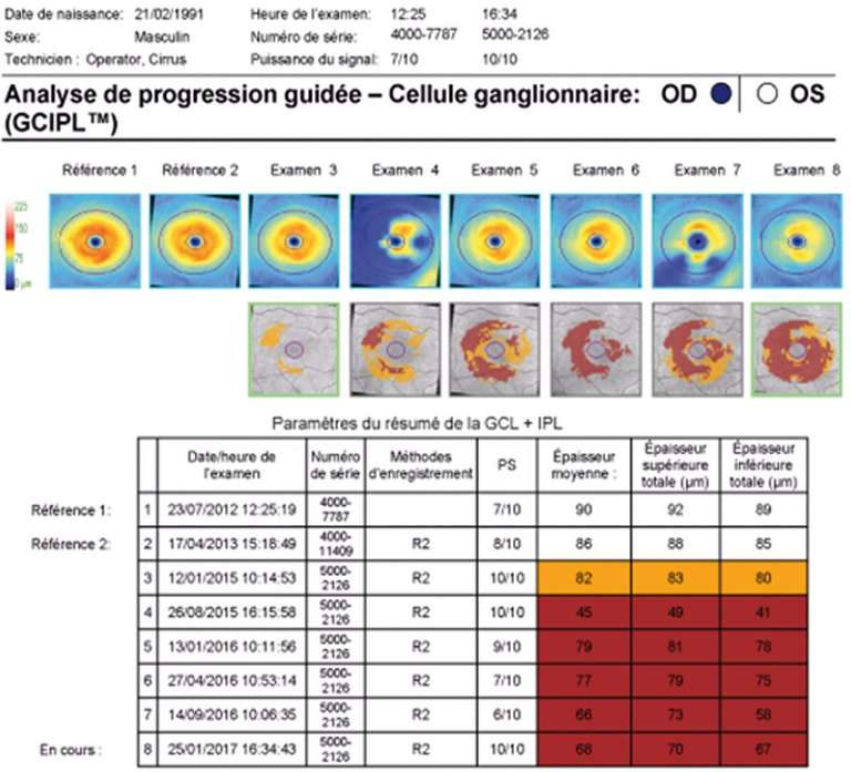 Figure 2. Analyse automatisée de progression (GPA) du complexe GCIPL par Cirrus™ HD-OCT.